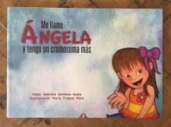 Me llamo Ángela y tengo un cromosoma más